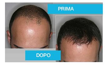Mezzi per una perdita di capelli sulla testa di uomini